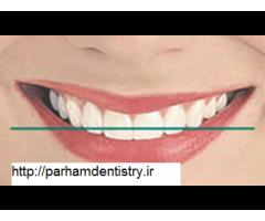 مطب جهت ارتودنسی دندان